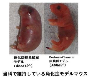 i) 道化師様魚鱗癬、掌蹠角化症等、重症型角化異常症の病態解明、遺伝子変異解析
