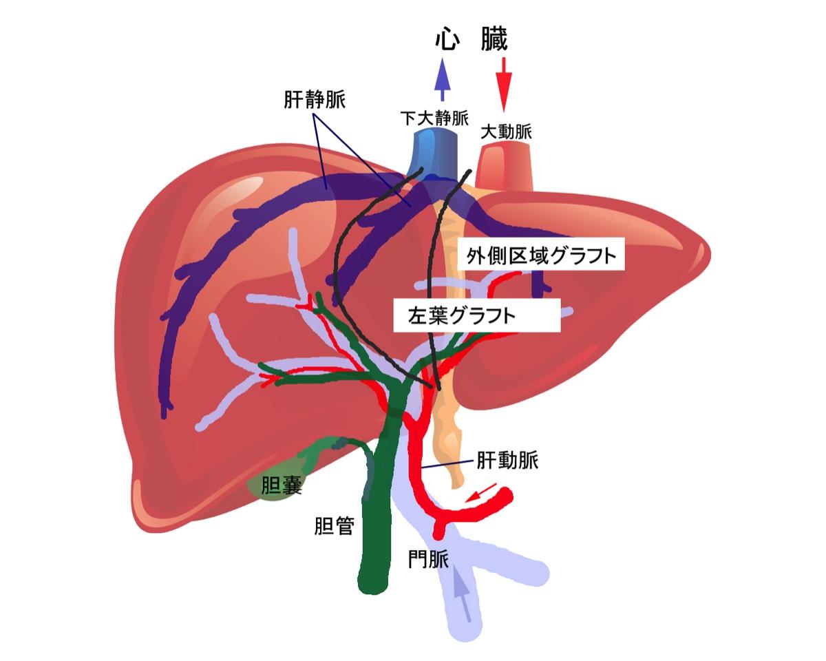 名古屋大学医学部附属病院 移植外科