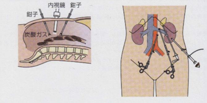 腹腔鏡手術 | 先進医療への取組 ...