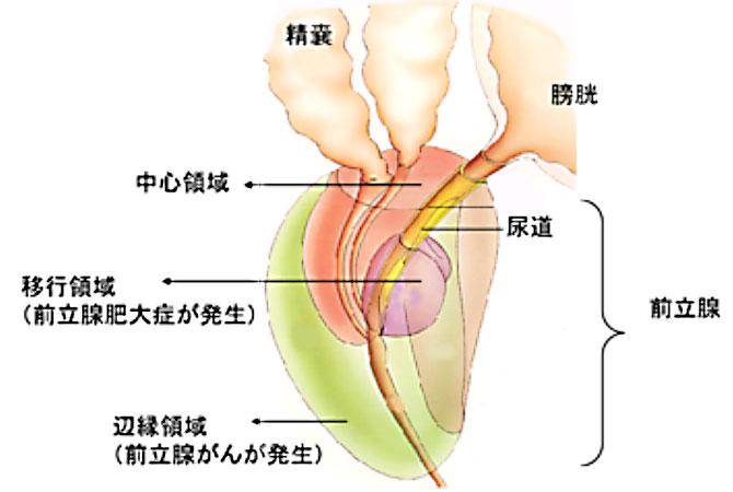 前立腺がん | 泌尿器科の病気に...