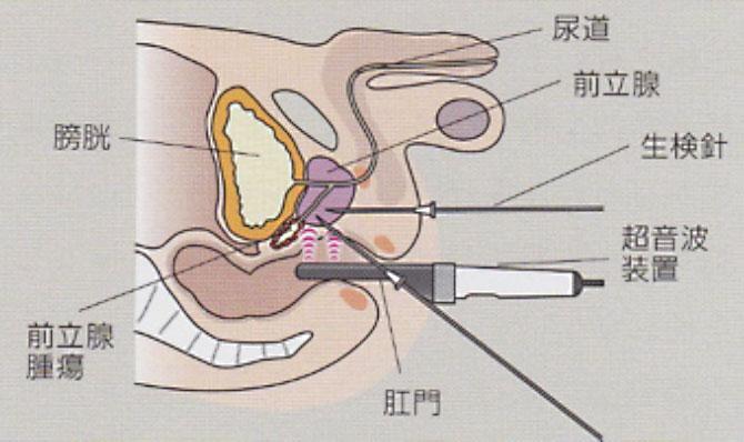 前立腺 癌 検査