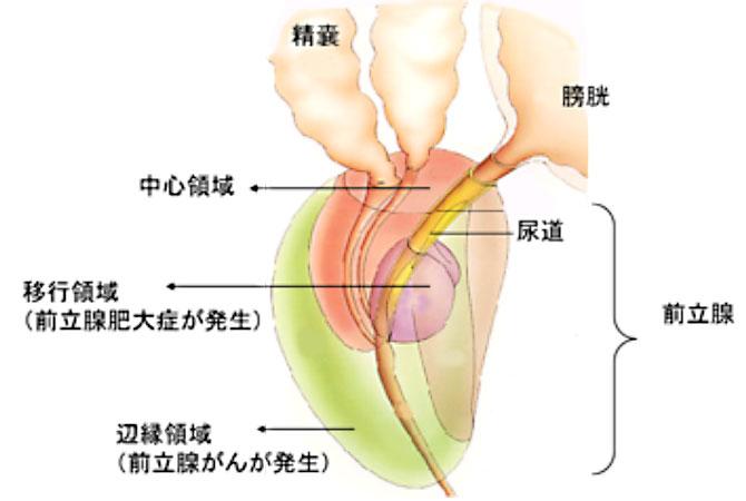 前立腺 肥大 予防